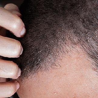 でこぼこ 頭皮 かゆみ 頭皮が異常に痒いです。